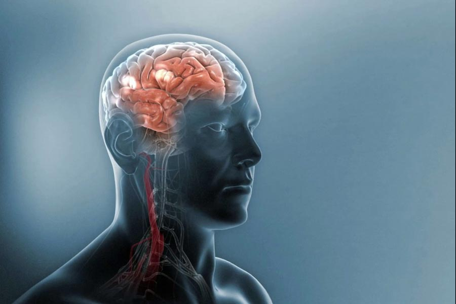 Mi az a sclerosis multiplex? Mik a tünetei?