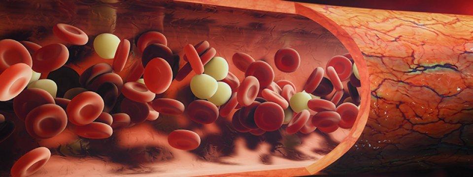 1. kép - a vérszegénységsnek több fajtáját különböztethetjük meg