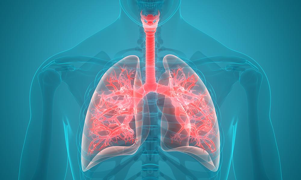 1. kép - a tüdőembólia tünetei között a legerősebb a mellkasi fájdalom
