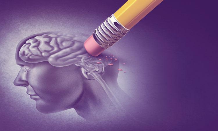 Alzheimer-kór – Minden, amit érdemes tudni  róla