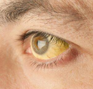 gilbert-szindróma