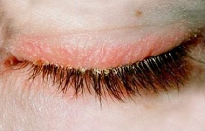 Szemhéjgyulladás (Blepharitis)
