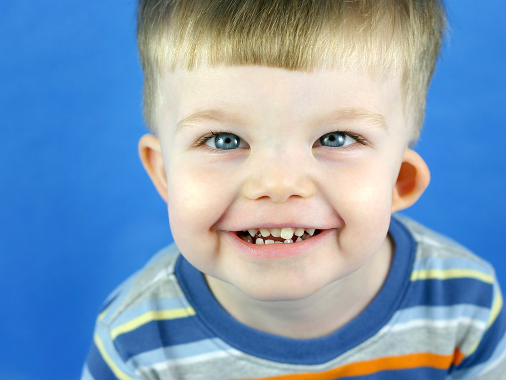1. kép - A Williams szindróma tünetei már gyerekkorban is megjelennek
