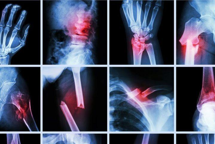 Osteogenesis Imperfecta – Az üvegcsontúság tünetei, kialakulása, kezelése