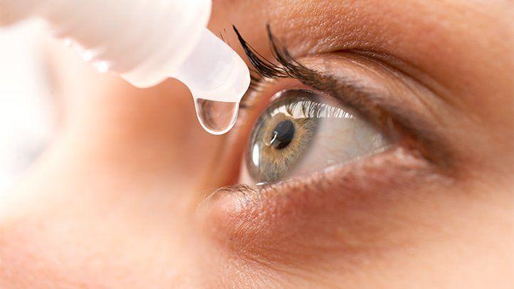 1. kép - A Sjögren-szindróma egyik leggyakoribb tünete a szemszárazság