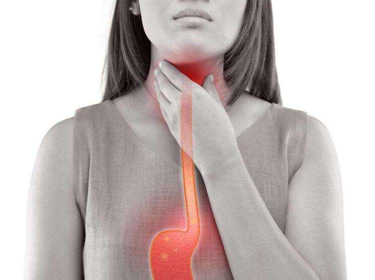 reflux tünetei