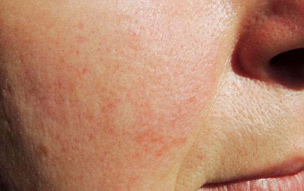 Rosacea típusai, tünetei és kezelése