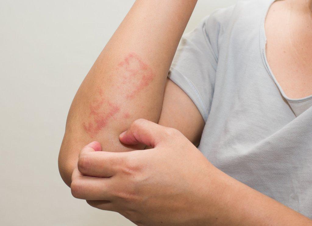 Ekcéma (dermatitisz): tünetek, kialakulása és kezelése