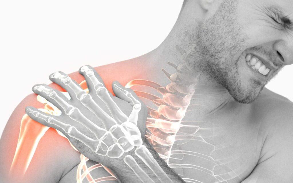 1. kép - A vállfájdalom szinte minden rotátor köpeny sérülés alapját képezi
