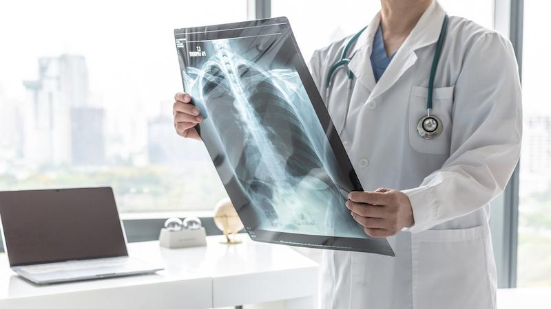 Tüdőfibrózis tünetei – valós veszélyt jelent?