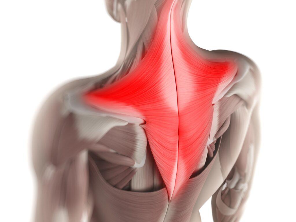 A csuklyásizom (trapezius) fájdalom szinte bármelyik korosztálynál megjelenhet