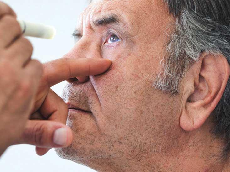 Szürkehályog tünetei és kezelése – vajon hogyan ismerhető fel?