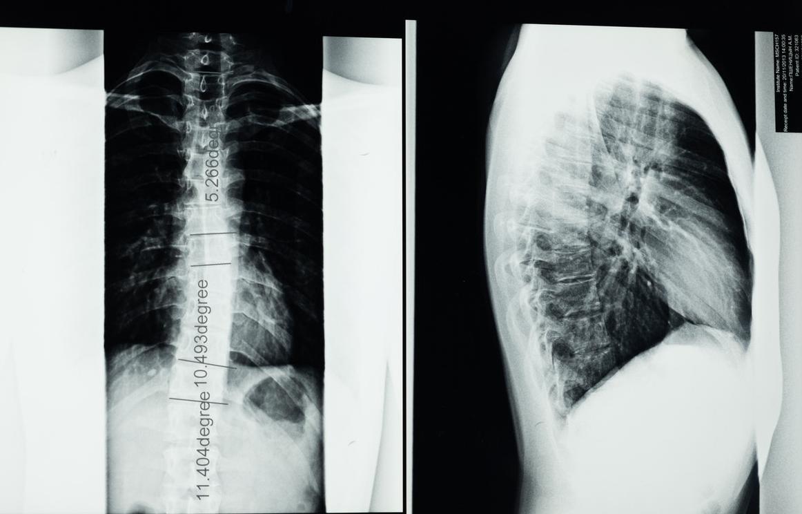 Proteus-szindróma – Minden amit érdemes tudni róla