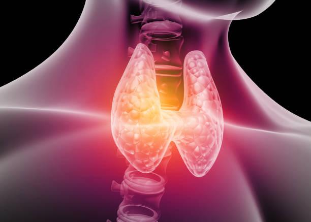 Basedow-Graves kór – Tünetek, Diagnózis és Kezelés