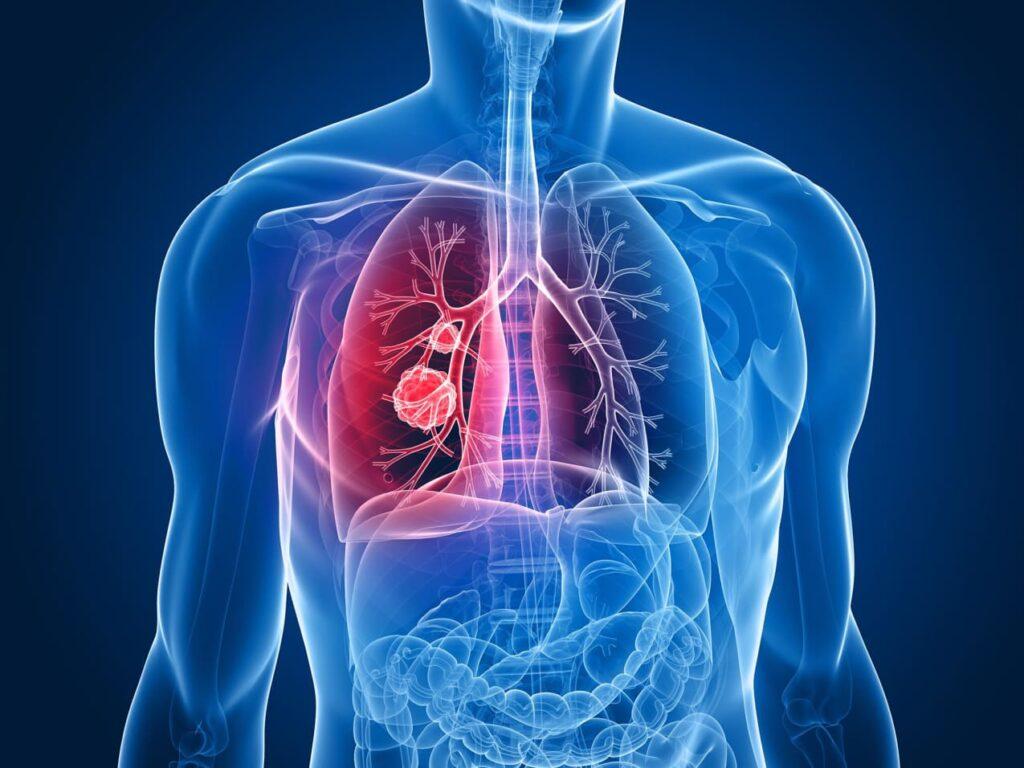 Tüdőrák tünetei – 5 korai jel, amire érdemes odafigyelnie!