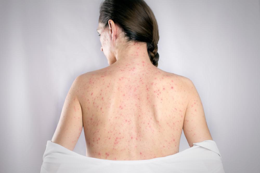 Övsömör tünetei, diagnózisa és kezelése – minden az övsömörről!