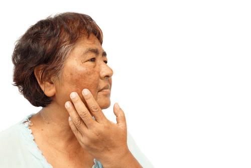 Addison kór - Tünetek és kezelések