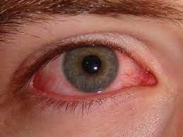 Kötőhártya gyulladás tünetei, kezelése és megelőzése