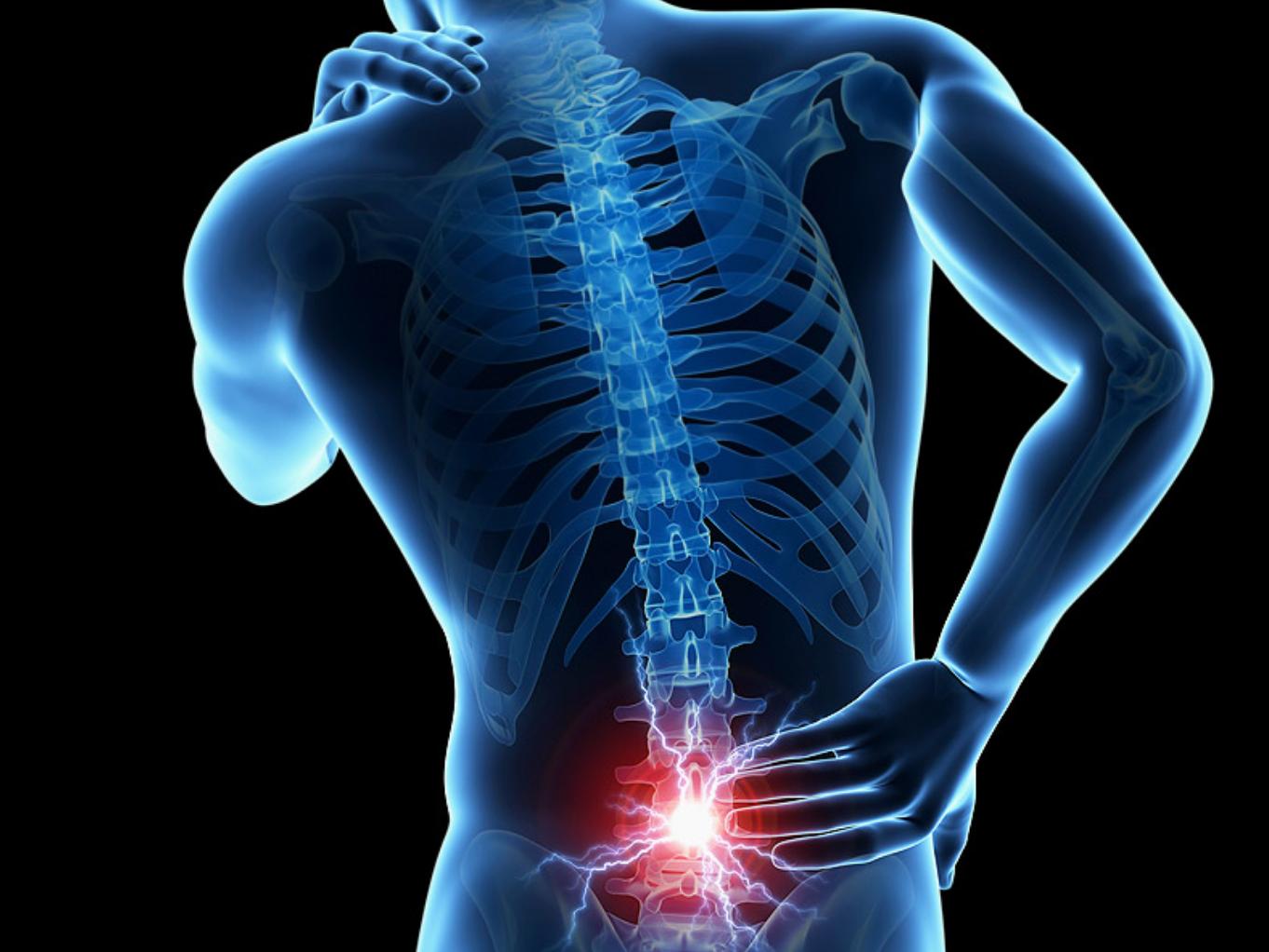 Farkcsont fájdalom (coccyx) – kialakulása, kezelési lehetőségei
