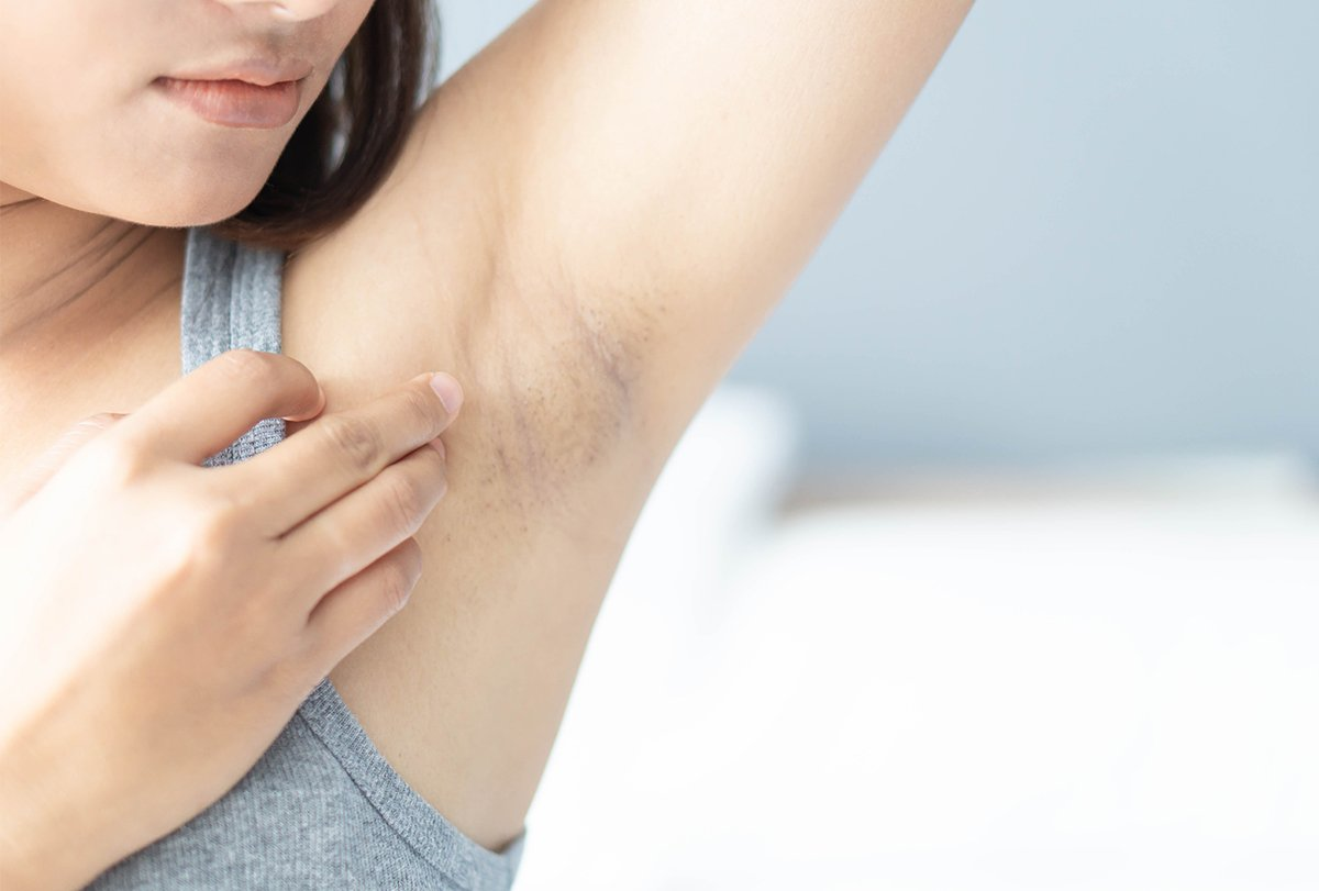 Hónalj fájdalom – mikor érdemes orvoshoz fordulni?