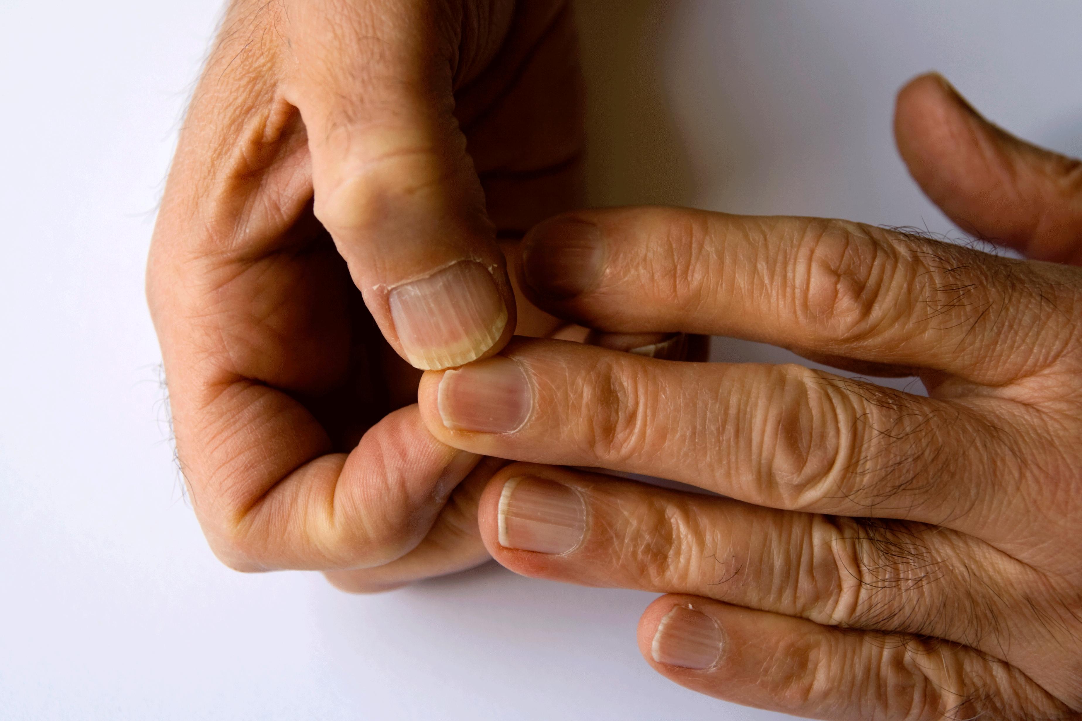 Körömágy gyulladás kezelése – erre figyeljen, hogy elkerülje a fertőzést!